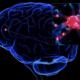 Капсулы «МОЗГ ТЕРАПИ» от старения мозга – реальные отзывы, купить в аптеке, цена, развод или нет